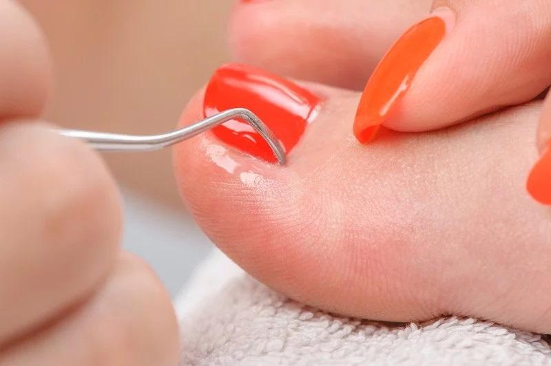 Gdzie można realizować zabiegi na paznokcie?